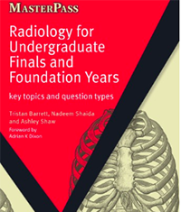 Radiology for Undergraduate Finals and Foundation Years